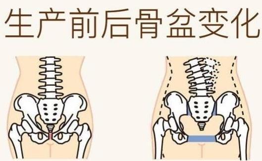 产后是否有必要做骨盆恢复等项目吗?(图1)