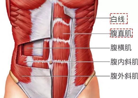 腹直肌分离会怎么样?产后腹直肌分离如何康复