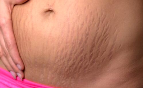 妊娠纹一般是在怀孕几个月时长,如何避免妊娠纹出现?
