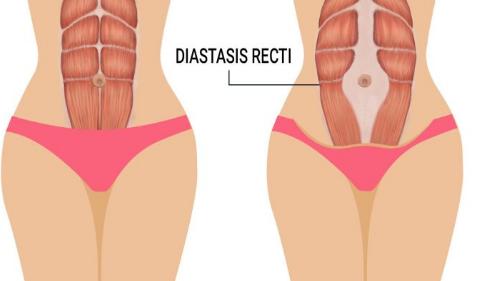做完腹直肌恢复肚子会变小吗?