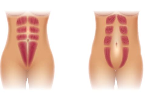 腹直肌分离有什么影响?如何拯救腹直肌分离?