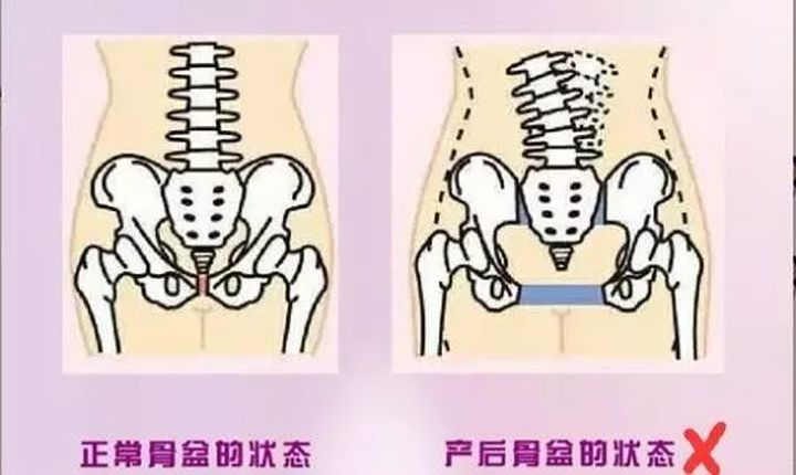 """产后""""骨盆康复""""的真实操作,你知道吗?(图2)"""