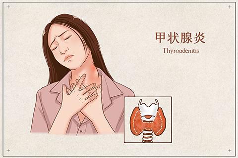 产后性格大变,当心是甲状腺出问题